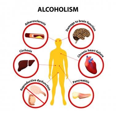 Alcoholism. infographic