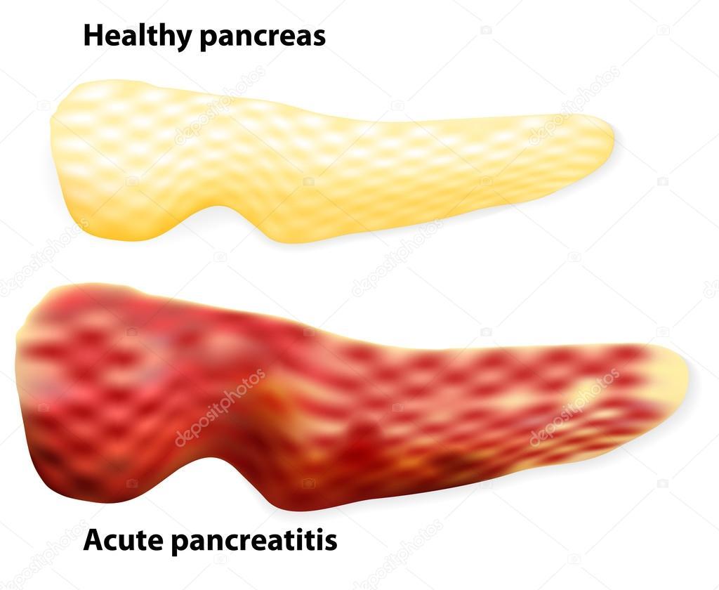 pancreatitis. las diferencias entre páncreas sano y infla — Vector ...