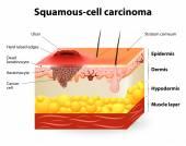 Spinocelulární karcinom