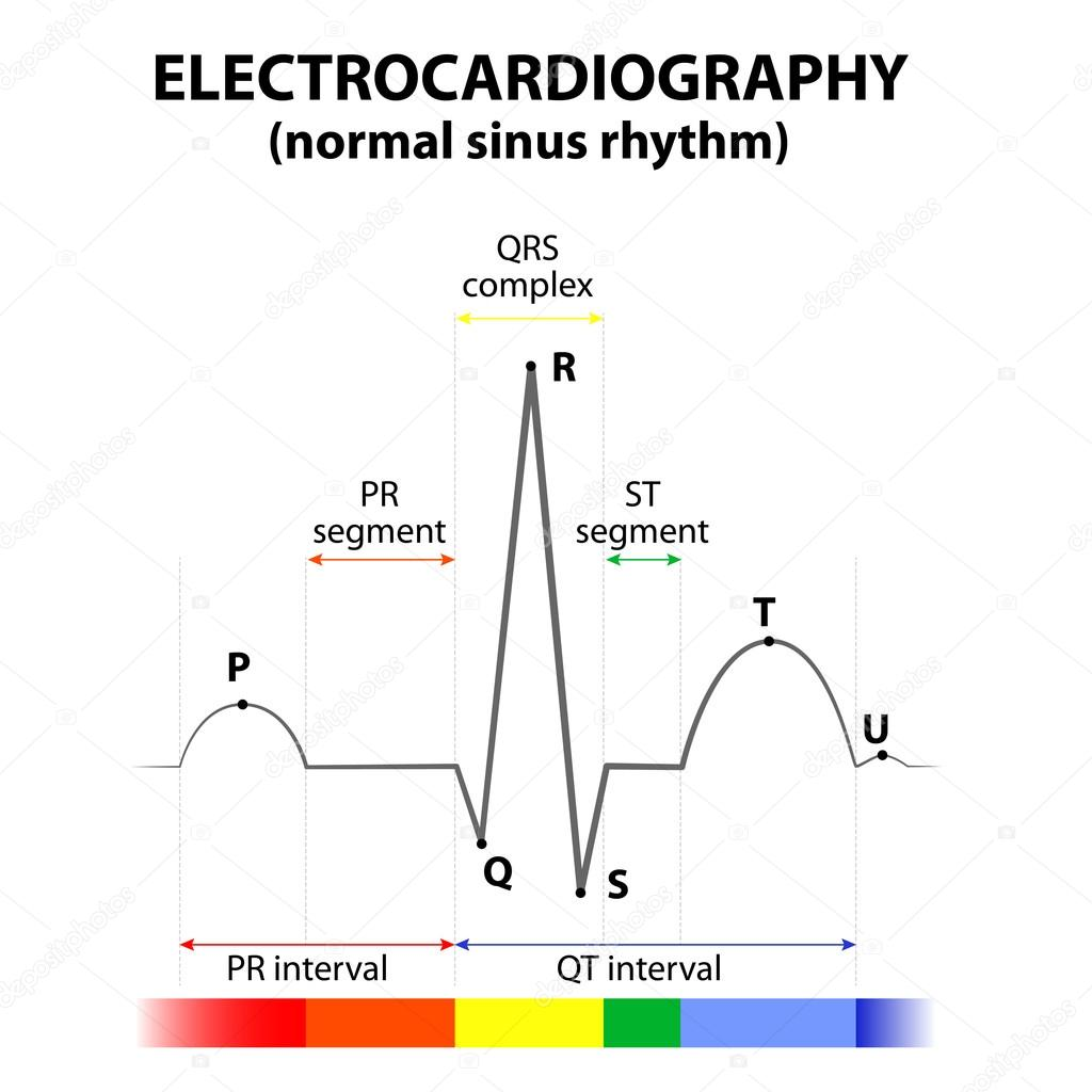 ECG of a heart in normal sinus rhythm — Stock Vector