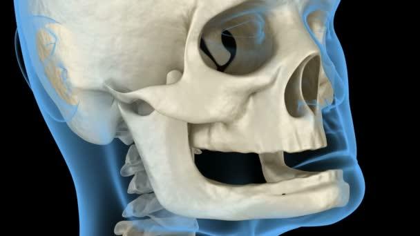 Kiefer, Knochenschwund nach Zahnverlust. Medizinisch genaue zahnärztliche 3D-Animation