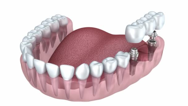 eine Nahaufnahme der unteren Zähne und Zahnimplantate isoliert auf weiss