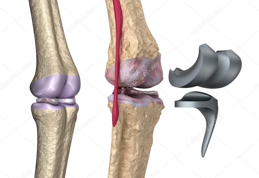 Knie und Titan-Scharnier-Gelenk. isoliert auf weiss — Stockfoto ...