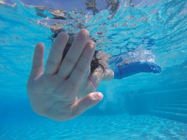 Unrecognizable girl with plastered arm swimming underwater in pool