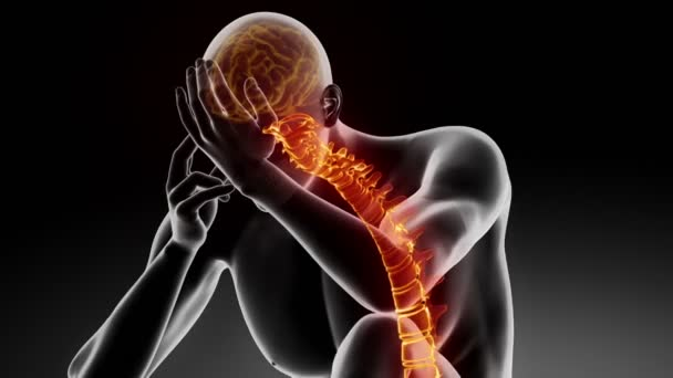 Hurt spine - pain rising up to the brain