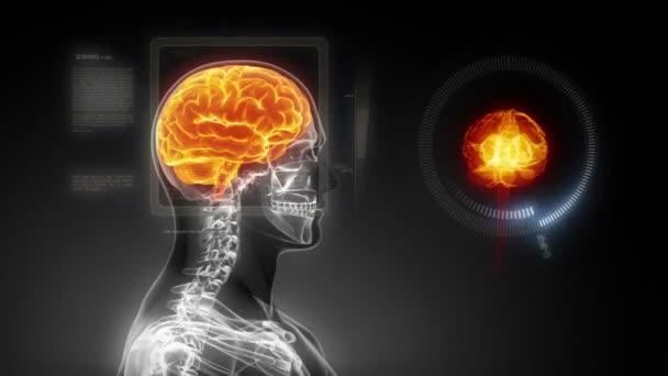 lidský mozek lékařské x-ray skenování