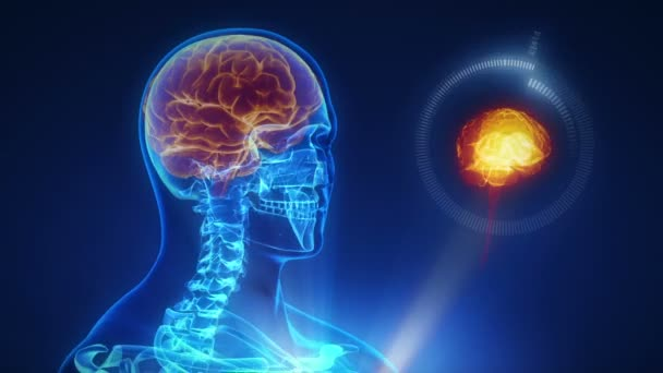 lidský mozek x-ray skenování