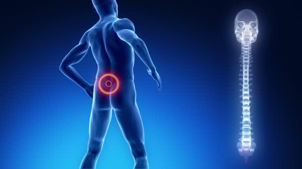 Pain in backbone