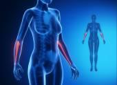 ULNA x--ray bones scan