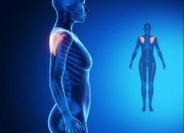 SCAPULA x--ray bones scan