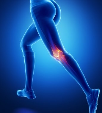 Running woman with Injured knee