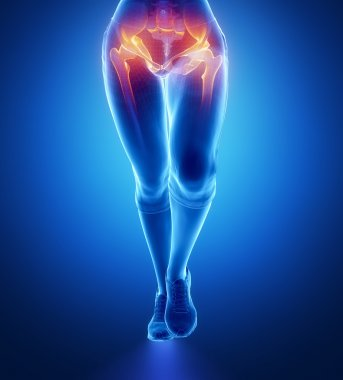 Hip injury in female body