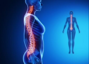 female body with SPINE bone scan
