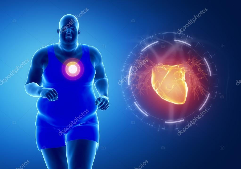 hombre obeso con ataque al corazón — Foto de stock © CLIPAREA #74136497
