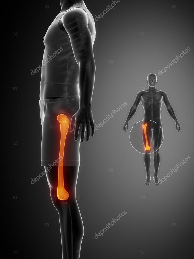 Oberschenkelknochen Knochenscan — Stockfoto © CLIPAREA #74136831
