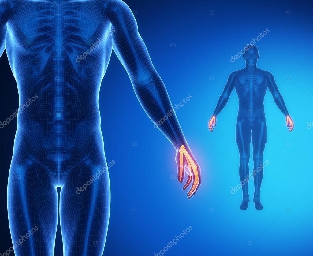 Handgelenk Knochen Anatomie Scan — Stockfoto © CLIPAREA #74137401