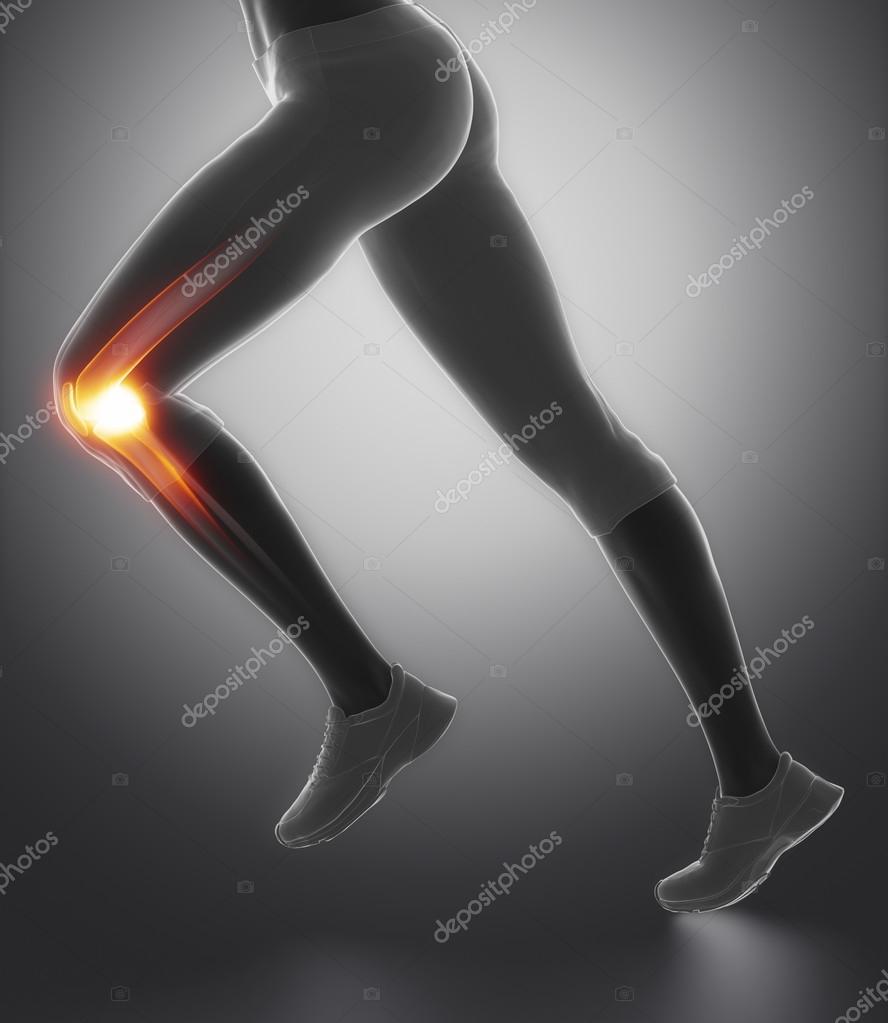 Knie- und Meniskus in Sportverletzungen — Stockfoto © CLIPAREA #74137853