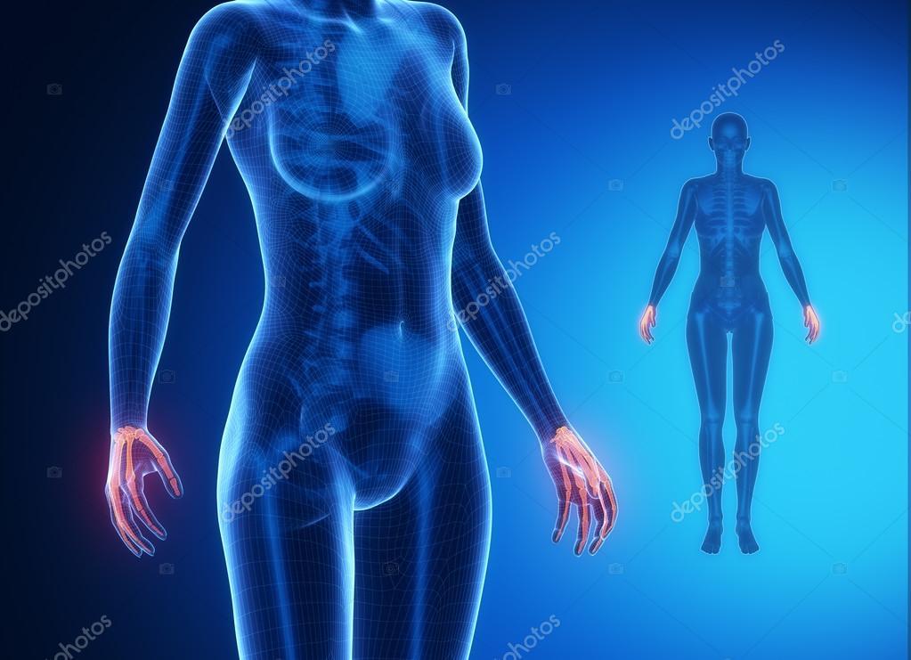 Muñeca anatomía radiografía ósea — Fotos de Stock © CLIPAREA #74138489