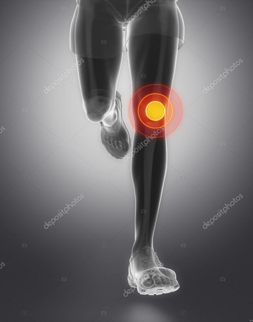 Hombre corriente con la anatomía de la rodilla — Foto de stock ...