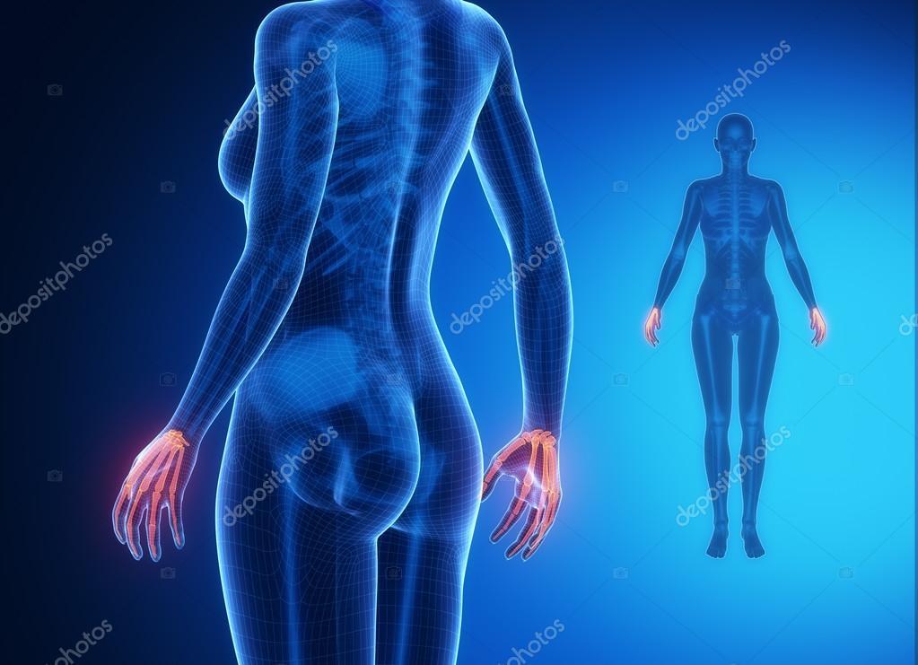 Anatomía ósea de muñeca — Fotos de Stock © CLIPAREA #74138629