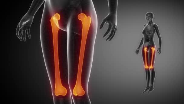 FEMUR bone skeleton x-ray scan