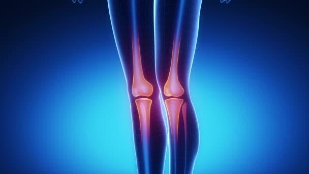 térd radiográfia artrózisban az ízületek helyreállnak-e sérülés után