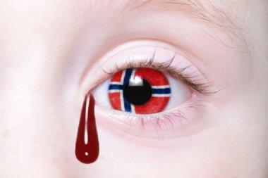human's eye with national flag of norway with bloody tears.