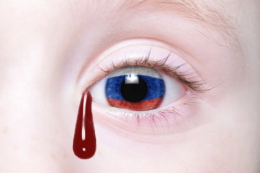 human's eye with national flag of russia with bloody tears.