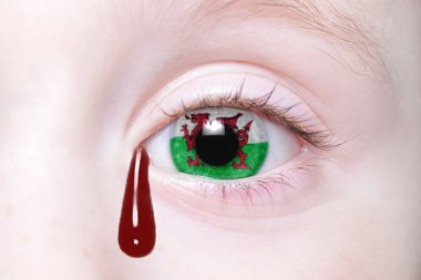 human's eye with national flag of wales with bloody tears.
