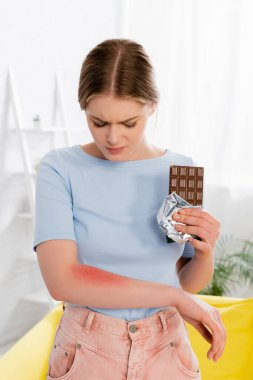 Woman with allergy redness holding chocolate bar stock vector