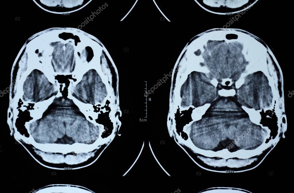 CT y mri del cráneo — Foto de stock © Adrx #53913369