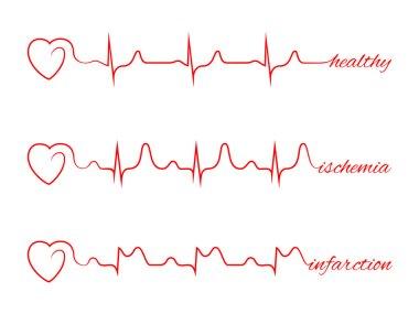 Heart beats various cardiogram vector set. Electrocardiogram and infarction pulse, line health, cardiology medicine illustration stock vector