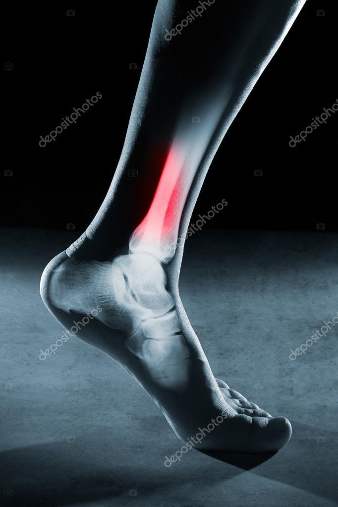 Menschlicher Fuß, Knöchel und Bein im Röntgenbild — Stockfoto ...