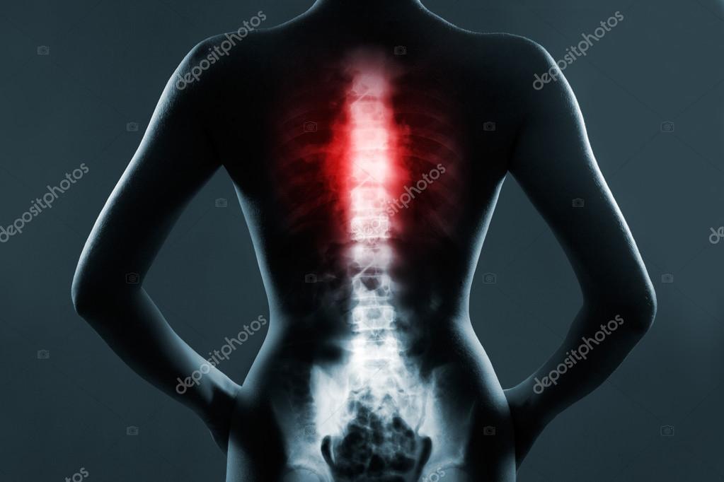 La espina dorsal del tórax está resaltada en color rojo — Foto de ...