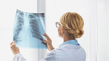 Blonde doctor looking at x-ray near window in hospital stock vector