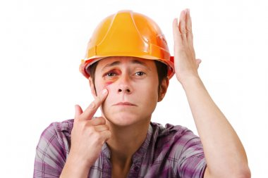 Female worker with a black eye in the helmet