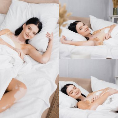 Collage of cheerful woman with vitiligo smiling while resting in bed stock vector