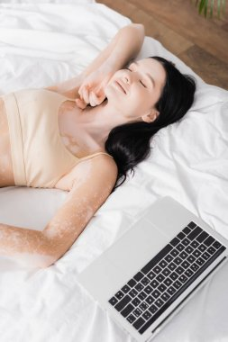 High angle view of brunette woman with vitiligo resting on bed near laptop stock vector