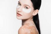 mladá krásná žena s vitiligo a náplasti na obličeji izolované na bílém