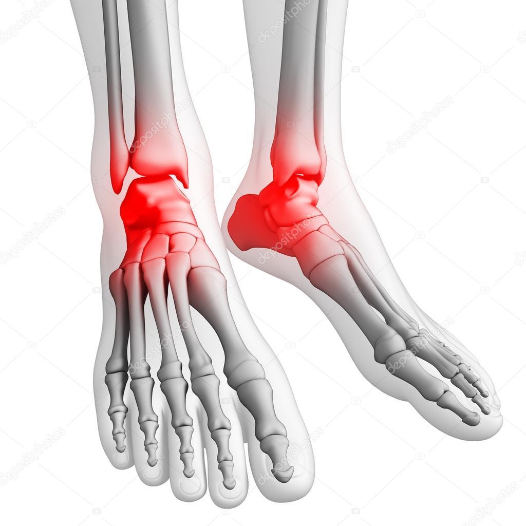 Fuß Schmerzen Kunstwerk — Stockfoto © pixdesign123 #55496307