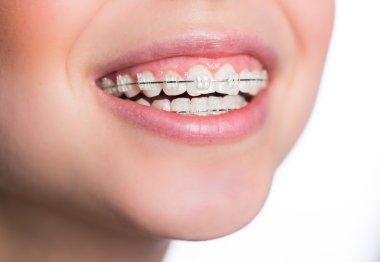 Woman with teeth braces