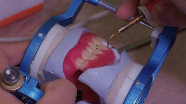 The process of making a dental prosthesis in a dental laboratory.