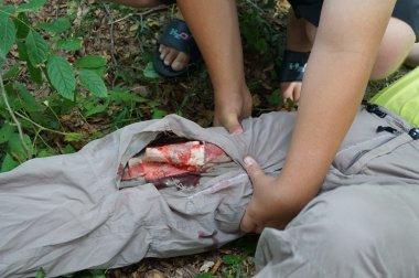 Stabilizing open  fractures