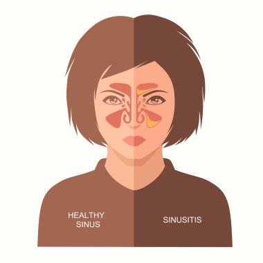 sinusitis disease,