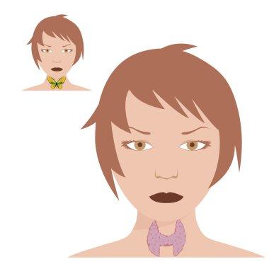 thyroid with hashimotos