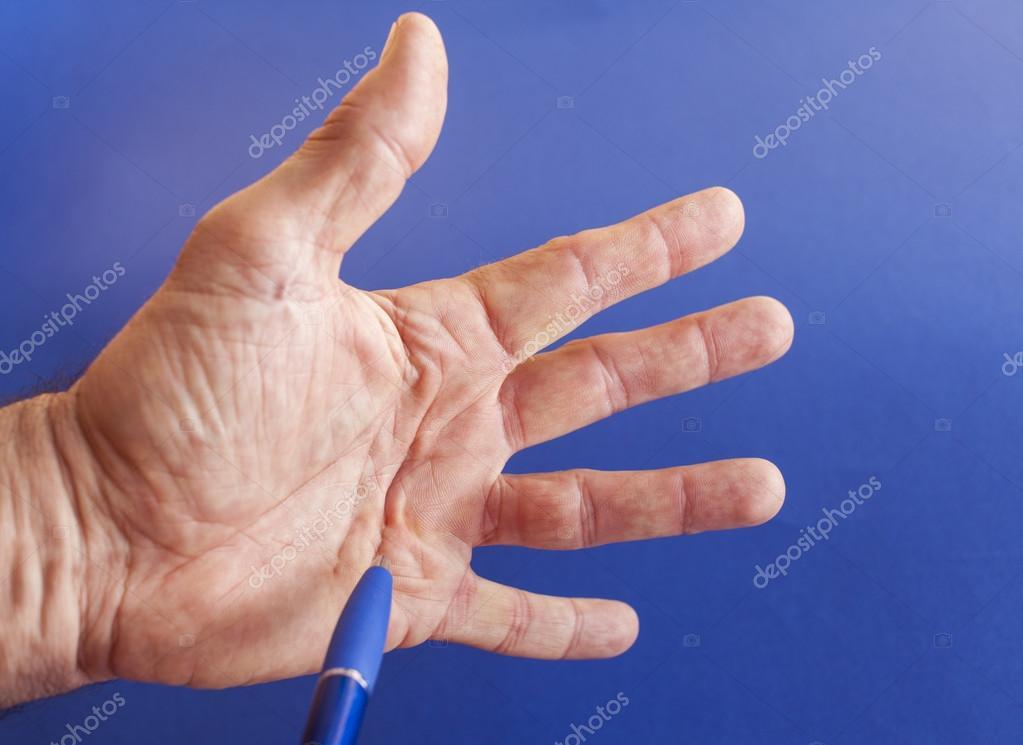Mano di un uomo con contrattura Dupuytren blu — Foto Stock