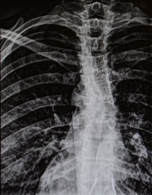 X-ray of human rib cage and spine