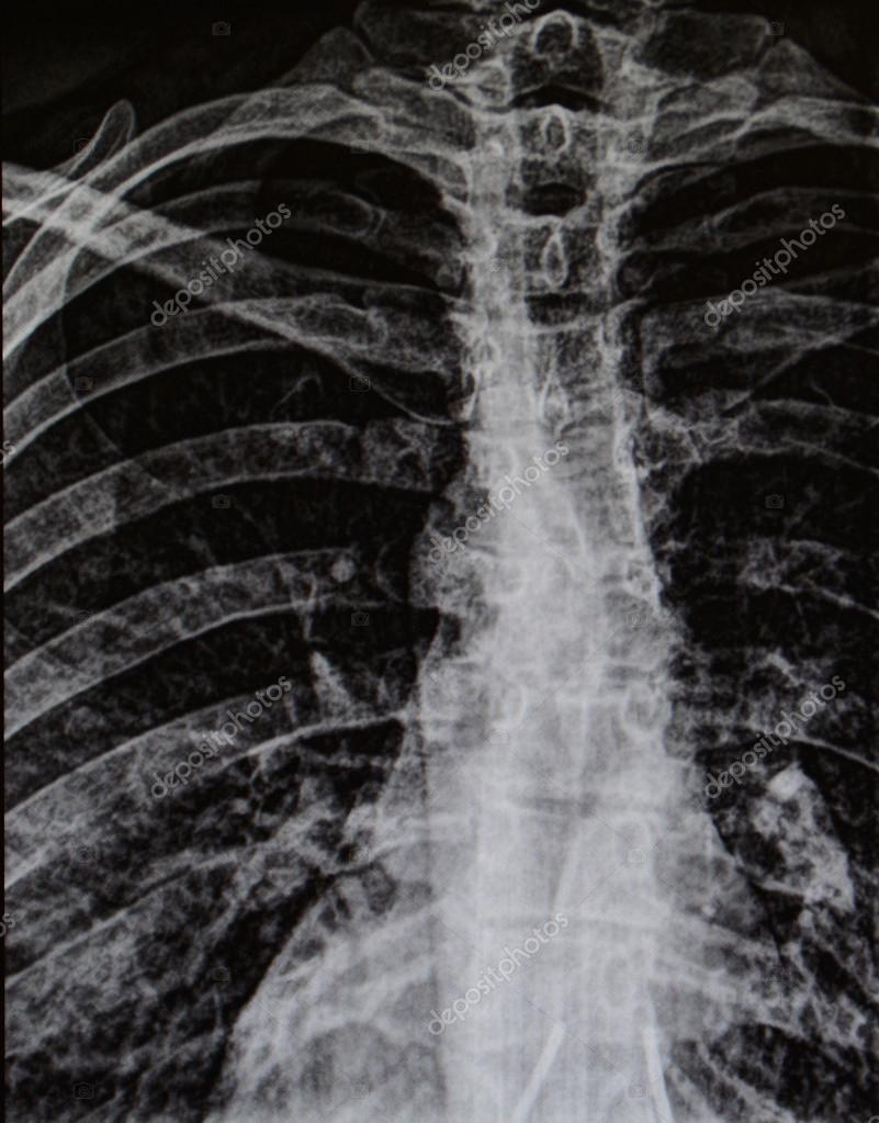 Radiografía de la jaula humana de la costilla y la columna vertebral ...