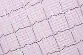 Chiuda in su di un elettrocardiografo conosciuto anche come un ECG
