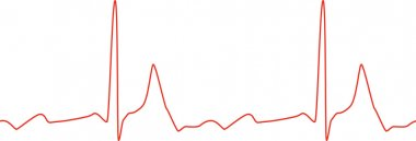 Sseamless ECG graph on white background